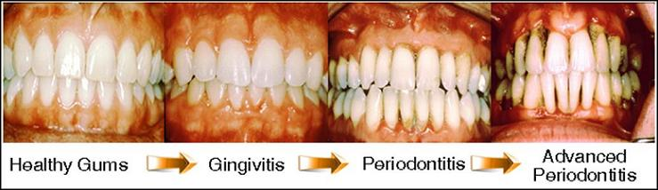 How To Reverse Periodontal Disease Without Surgery