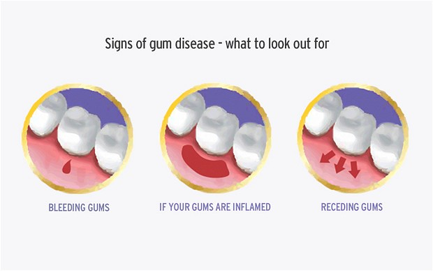 Ten Classic Signs You Have Gum Disease & How Best To Treat ...